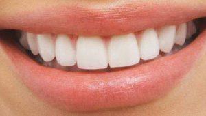 rêver de dents.